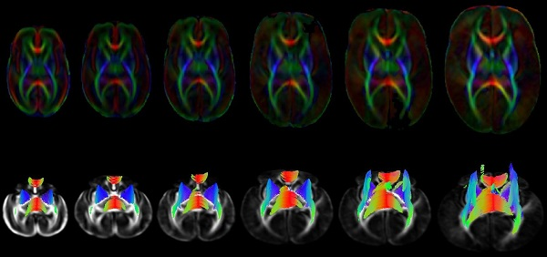 Brain Connectivity Development from Diffusion MRI