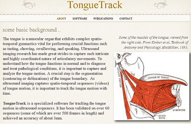 Tongue Tracking